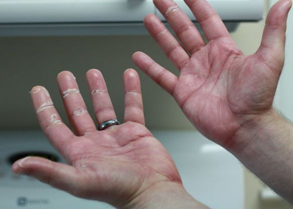 Chemotherapy-induced acral erythema (hand-foot syndrome) by Lucid Smog / wikimedia *