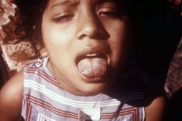 """Scorbutic tongue"" - proved to be a vitamin C deficiency, involves inflammation of the tongue, or glossitis, which includes areas of erythema and petechial submucosal hemorrhages / CDC - Wikimedia * Date 1970"